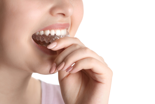 How To Take Proper Care Of Your Teeth?